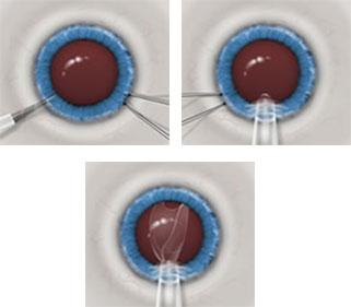The ICL Procedure