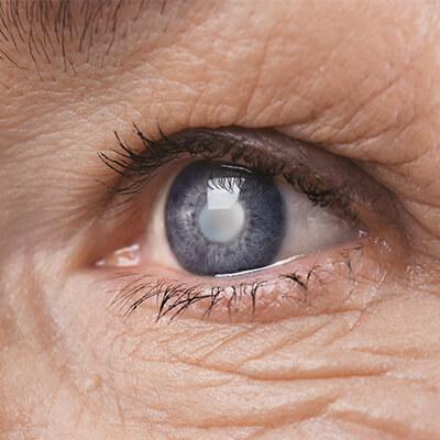 Closeup of an eye with a cataract