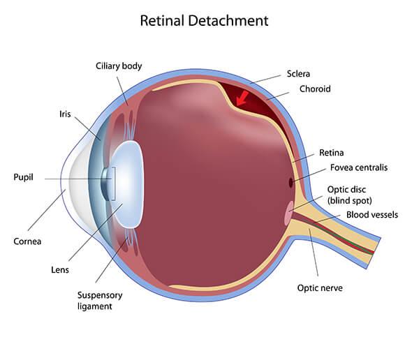 Retinal Detachment Diagram